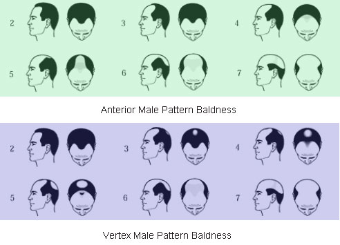 Alopecia hair loss study