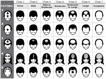 World Hair Research 187 Hair Loss Scale